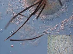 Collectotrichum capsici 1